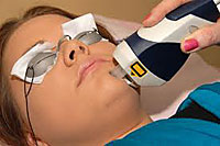 Laser Acne Treatment for Severe Acne Cases