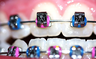 Average Cost Of Braces For Adults 97